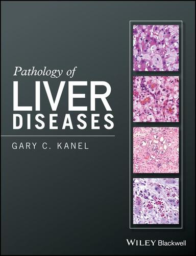 9781118895030 Pathology Of Liver Diseases