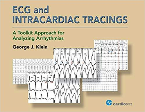 9781942909255 Ecg & Intracardiac Tracings